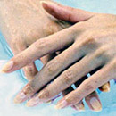 Hand Problems & treatments